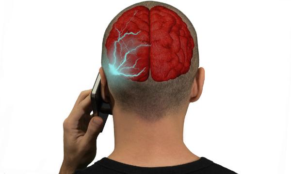Die Handystrahlung wirkt direkt auf den Kopf und das Gehirn ein