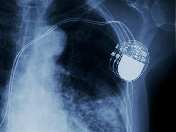 Ein Herzschrittmacher unter einem Röntgengerät