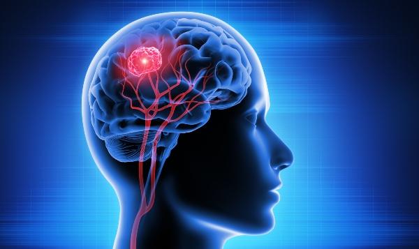 Diagnose Hirn-Tumor