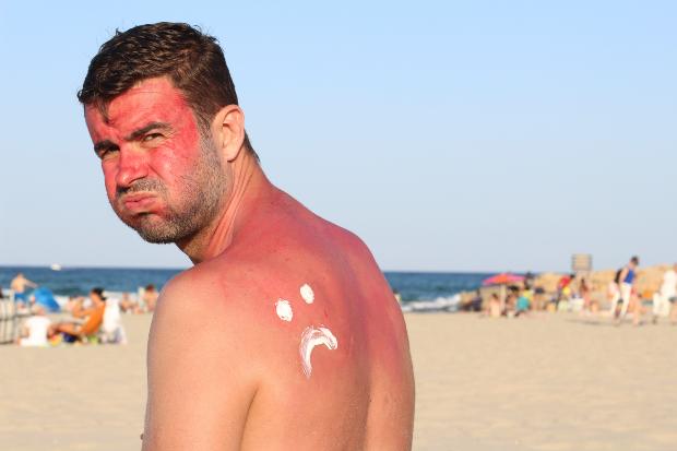 Mann am Strand mit Sonnenbrand